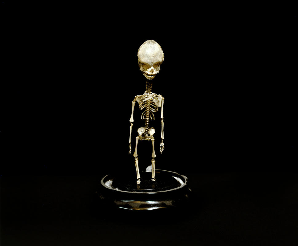 Little-skeleton-rtp