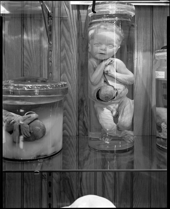 Neal Rantoul   Mutter Museum, Philadelphia, PA 2005